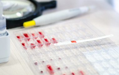 Litmus strips for blood analysis on pallets with the blood to determine the Rh factor.