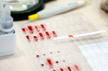 Litmus strip on pallets with the blood to determine the Rh factor.