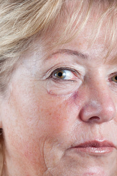 Mature woman with gradually fading scar three weeks after Mohs surgery for Basal Cell Carcinoma