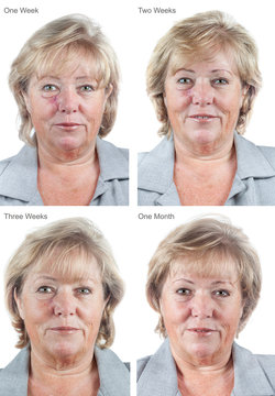 Mature woman with healing scar 1, 2, 3 weeks and one month after Mohs surgery for Basal Cell Carcinoma