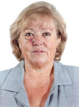 Mature woman with stitched cheek one week after Mohs surgery for Basal Cell Carcinoma