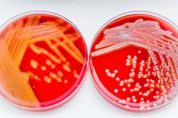 Staphylococcus aureus and Streptococcus pyogenes