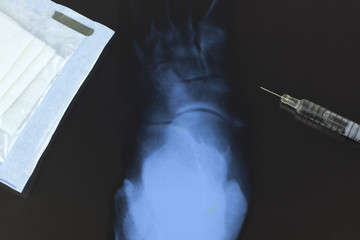 Syringe and bandage on a radiograph of the foot