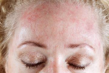 Mature woman's very dry & peeling skin with seborrheic dermatitis