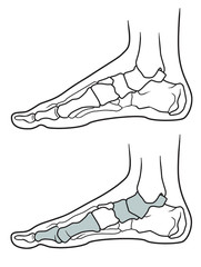 Flatfoot, The structure of the legs with flat feet and normally feet  on a white background