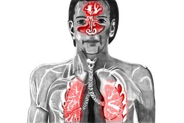 Erkältung Obere Atemwege frei gestellt