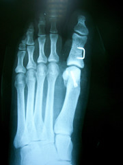 x ray , x-ray image photo of feet front view with a clove after fracture.
