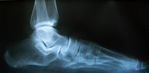 X-ray image of normal foot side.
