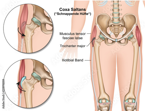 Anatomie des Piriformismuskels\