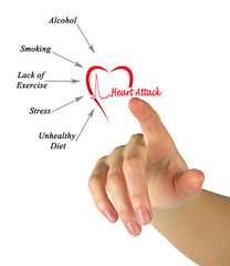 Causes of heart attack