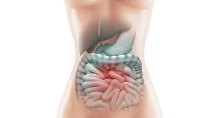 Anatomia intestino malato con tumore o malattia