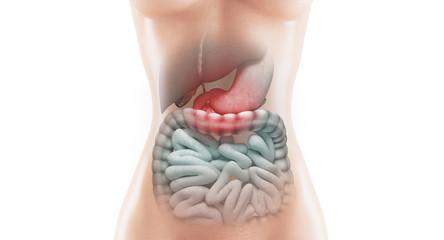 Organi infiammati intestino o stomaco o cistifellea