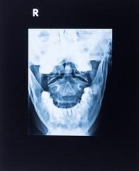 röngenbild eines mensclichen kopfes - nahaufnahme
