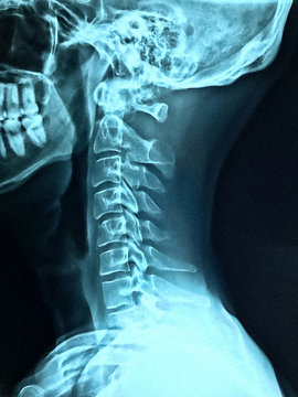 X-ray of Neck