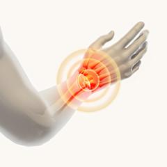 Wrist painful - skeleton x-ray.