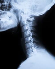 Röntgen Bild - X-Ray Schädel und Halswirbelsäule
