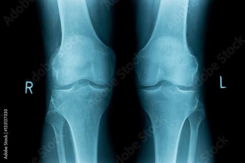 Röntgenbilder Knie Knochen\