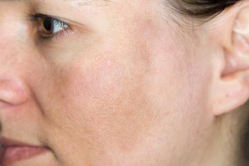 Junge Frau mit Pigmentflecken auf den Wangen