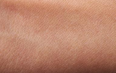 Flat human skin