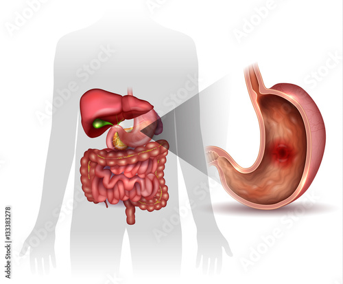 Stomach ulcer, interanal organs anatomy colorful drawing\