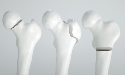 Fracture of the femur - breakpoints 1  4 - 3D Rendering