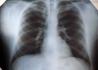 X-ray human lung