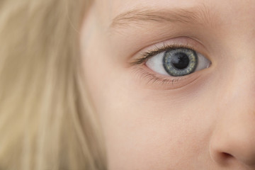 Close-up of girl with gray eye