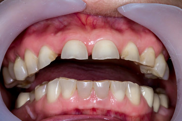 Patient's mouth before entire dental treatment and changes.