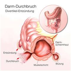 Dickdarm-Durchbruch.Divertikel.Dickdarmentzündung