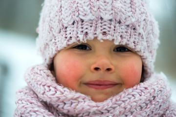 Little girl in winter season with red cheeks