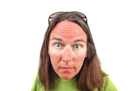 Woman with sunglasses sunburn