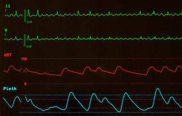 Close up of monitor with black screen showing atrial flutter on green lines, arterial blood pressure on red line and pulse oximetry for oxygen saturation on blue line.