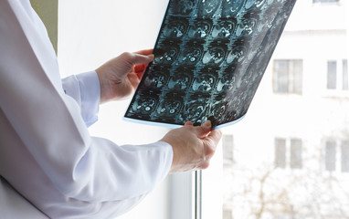 Doctor looking x-rays.