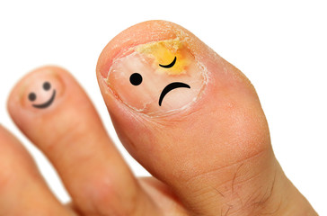 Onychomycosis fungal infection of the nail.  It is the most common disease of the nails. It is an actual skin infection with the Trichophyton rubrum is the most common dermatophyte.