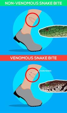 Venomous and non venomous snake bite in the leg. Snakebite. Beware of snakes. Flat vector illustrations