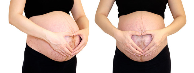 Pregnant woman 40 weeks, Pregnant, Close up of a cute pregnant belly, Isolate and Clipping Path