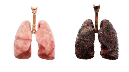 healthy lungs and disease lungs on white isolate. Autopsy medical concept. Cancer and smoking problem.