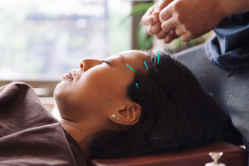 Acupuncture session, Japanese medical study. Young woman is lying on mat, operator have inserts the needles in patient face
