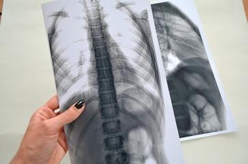 Рентген человеческого позвоночника - заключение врача, медецина