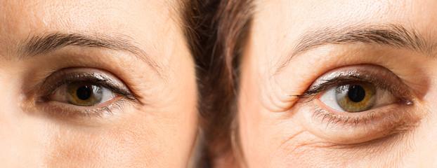 Trattamento anti età al viso