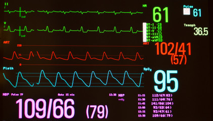 Monitor with black screen showing Intraventricular Conduction Delay on green lines, arterial blood pressure on red line , oxygen saturation on blue line, temperature and noninvasive blood pressure.
