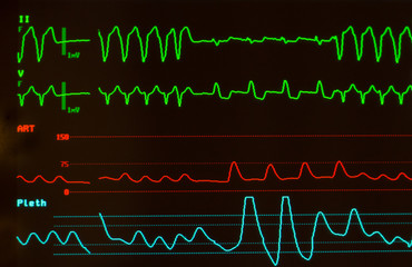 Close up of monitor with black screen showing ventricular tachycardia on ECG on green lines, arterial blood pressure on red line and oxygen saturation on blue line.