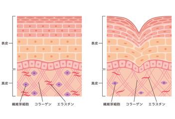 しわ 皮膚の構造 断面図