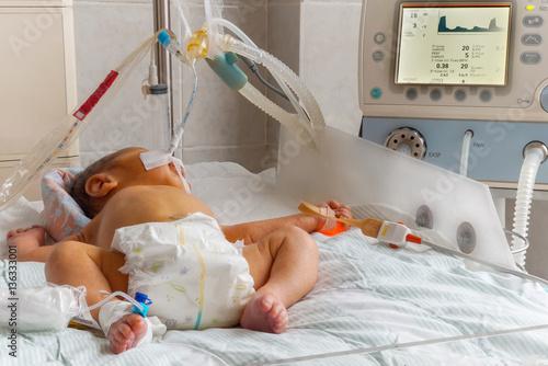 baby breathing machine