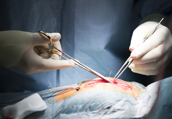 surgeons in sterile gloves needle clamp sutured wound