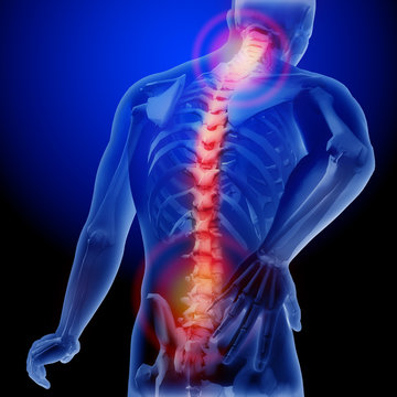 Spine pain. X-ray of the skeleton and body. Anatomical body of a man. 3d medical illustration.