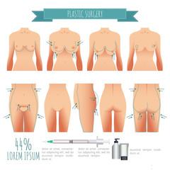Plastic surgery illustrations. breast lift, lipofilling, abdominoplasty