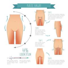 Plastic surgery illustrations. liposuction, lipofilling, abdominoplasty