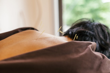 Acupuncture session in Japanese medical study. Young woman is lying on a mat while the operator inserts needles