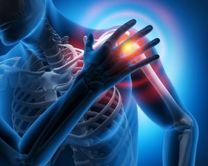 Schmerz im Schultergelenk